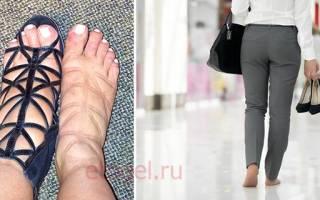 Крем для снятия отеков ног