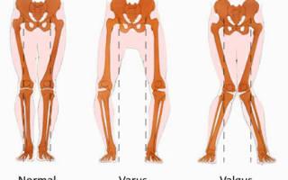 Кривые и ровные ноги