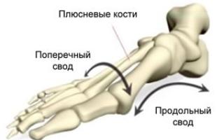 Рекомендации по исправлению плоскостопия