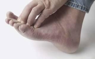 Кожа между пальцами ног трескается и чешется