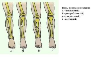 Наложение шины при переломе костей голени