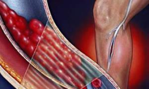 Схема лечения тромбофлебита нижних конечностей