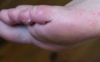 Почему лопается кожа между пальцами на ногах