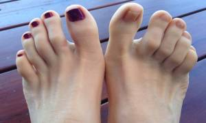 Воспаление сустава второго пальца ноги