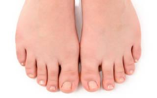 Воспаление ногтевого валика на ноге лечение