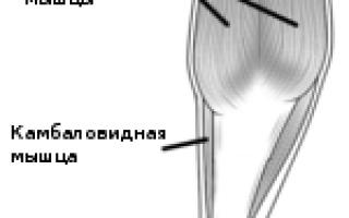 Что делать если болит ахиллово сухожилие