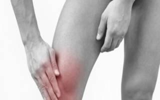 Воспаление мягких тканей стопы лечение
