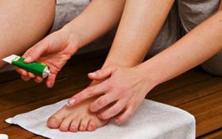 Как вылечить варикоз в домашних условиях