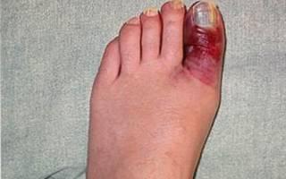 Ушиб большого пальца ноги симптомы