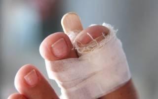 Первая помощь при переломе пальца на ноге