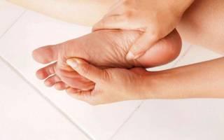 Трещина в пятке симптомы и лечение