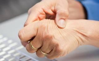 Ревматоидный артрит симптомы и лечение у женщин
