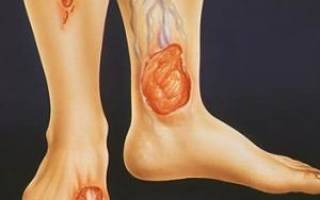Трофическая язва на ноге фото и лечение