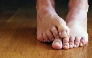 Чем лечить микоз кожи ног