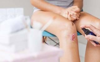 Антибиотик при ранах на ноге