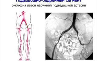 Протез бедренной артерии