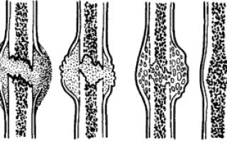 Костная мозоль на ребре