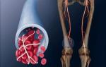 Профилактика тромбов в ногах