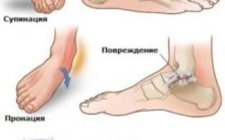 Боль в щиколотке ноги припухлость