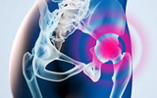 Уколы при коксартрозе тазобедренного сустава