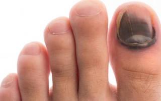 Сломал ноготь на ноге большого пальца