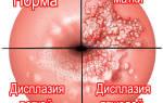 Цитограмма с патологией плоского эпителия lsil hpv