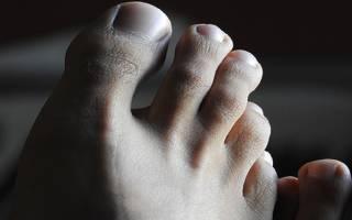 Болит большой палец на ноге лечение
