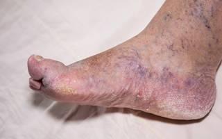 Почему отекают ноги при сахарном диабете