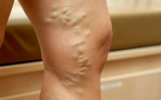 Вздутие вен на ногах лечение