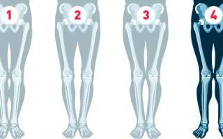 Как изменить форму ног