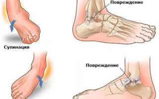Чем лечить растяжение связок стопы