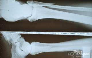 Реабилитация после перелома малой берцовой кости