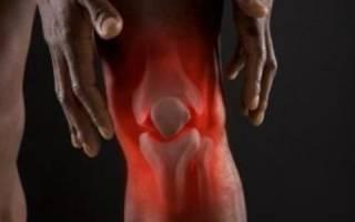 Как лечить больные колени в домашних условиях