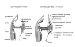 Диагноз ревматоидный артрит