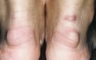 Шишки на пятках сзади причины и лечение