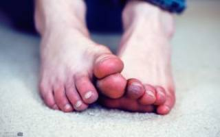 Посинел палец на ноге причины