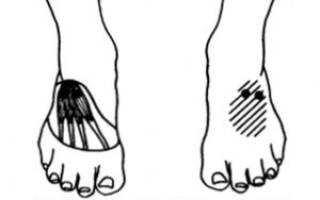 Мышцы мизинца стопы