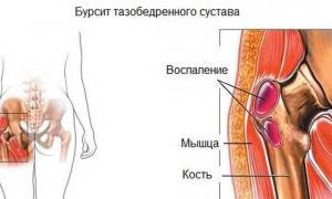 Болит левое бедро с внешней стороны