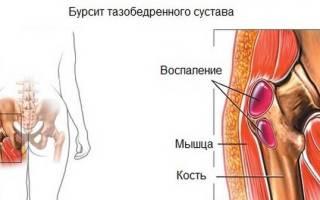 Болит кость таза слева