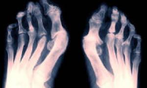 Лечение артрита стопы ног медикаменты