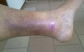 Воспаление вены на ноге лечение фото