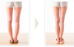 Как выпрямить кривые ноги в домашних условиях