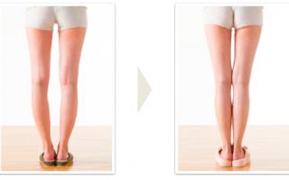 Что делать если ноги иксом