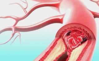 Тромбоз лучевой артерии