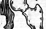 Перелом вертельной кости бедра