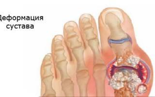 Таблетки от мочевой кислоты при подагре