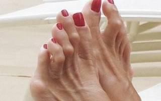 Молоткообразные пальцы на ногах фото