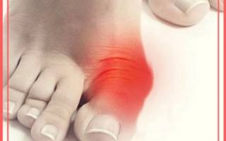 Косточка на ноге около большого пальца лечение