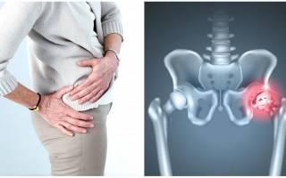 Проблемы с тазобедренным суставом