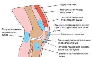Острый бурсит коленного сустава